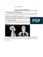 craniospinal irradiation assignment