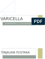 Varicella Anak
