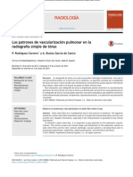 Los Patrones de Vascularización Pulmonar en La Radiografia Simple de Torax