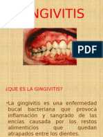 gingivitis.pptx