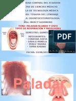 Características del Paladar