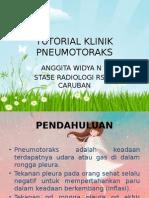 ANGGITA-PNEUMOTORAKS-PPT