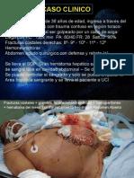 Caso Clinico Pac Critico