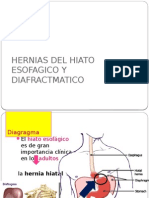 herniahiatal