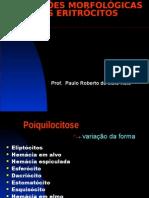 Alterações Morfológicas dos Eritrócitos