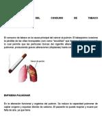 CONSECUENCIAS DEL CONSUMO DE TABACO.docx