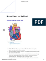 Normal Heart Vs