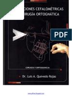 Predicciones Cefalometricas Para Cirugia Ortognatica