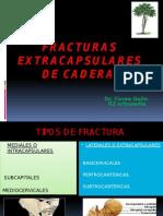Fracturas Extracapsulares de Cadera COREA