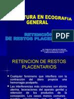 II. Retencion de Restos Placentarios