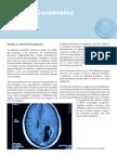 Gliomas Cerebrales