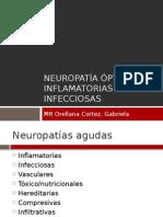 Neuropatía Ópticas Inflamatorias e Infecciosas