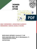 Proliferaciones Neoplasicas de Los Leucocitos