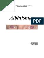 Albinism Us