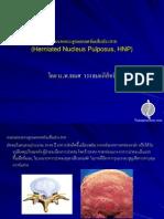 หมอนรองกระดูกแตกกดทับเส้นประสาท (Herniated Nucleus Pulposus, HNP)