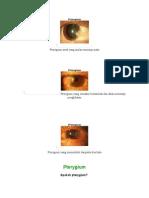 Pterygium.doc