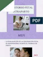 Monitoreo Electrónico Fetal Intraparto