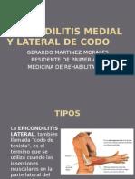 Epicondilitis Medial y Lateral de Codo Gerar