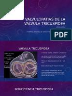 Valvulopatias de La Valvula Tricuspidea