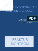 Fraktur Montegia Dan Fraktur Galeazzi