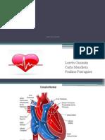 Cardiopatia Congenita Practica Mujer.