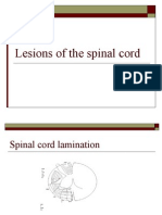 Lesions of the Spinal Cord