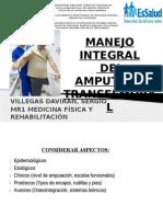Rehabilitación Integral del Amputado Transfemoral