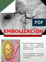 embolizacion ( radiologia intervencionista)
