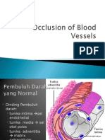 Occlusion of Blood Vessels