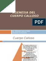 Agenesia Del Cuerpo Calloso