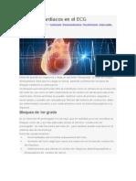 Bloqueos cardiacos en el ECG.docx