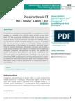 Congenital Pseudoarthrosis Of The Clavicle; A Rare Case