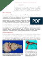 El Tumor de Estroma Gastrointestinal