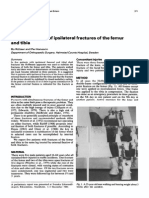 External Fixation of Ipsilateral Fractures of the Femur