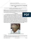 A Case Report on - A Rare Case of Laryngocele in a Young Male Men