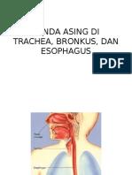 Benda Asing Di Trachea, Bronkus Dan Esophagus