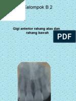 RADIOGRAF DMF2