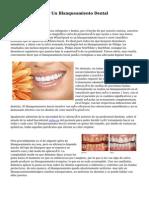 Cómo Seleccionar Un Blanqueamiento Dental