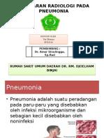 208516870-101200358-Pneumonia-Radiologi-Ppt(1)