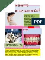 gingivitis dan ibu hamil BBLR