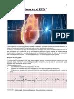 Bloqueos Cardiacos en El ECG