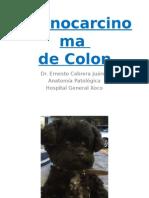 Adenocarcinoma de Colon.pptx