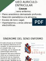 Bloqueo Auriculo Ventricular