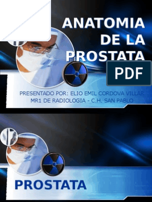 irrigacion prostata pdf