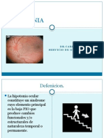 Hipotonia Ocular