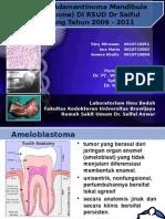 Prevalensi Adamantinoma of Mandibula (Ameloblastoma)