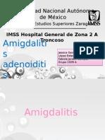 Amigdalitis Aguda y Crónica