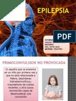 Epilepsia en pediatria