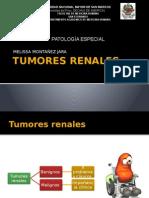 TUMORES BENIGNOS RENALES