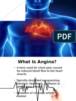 AGINA & MYOCARDIAL INFARCTION